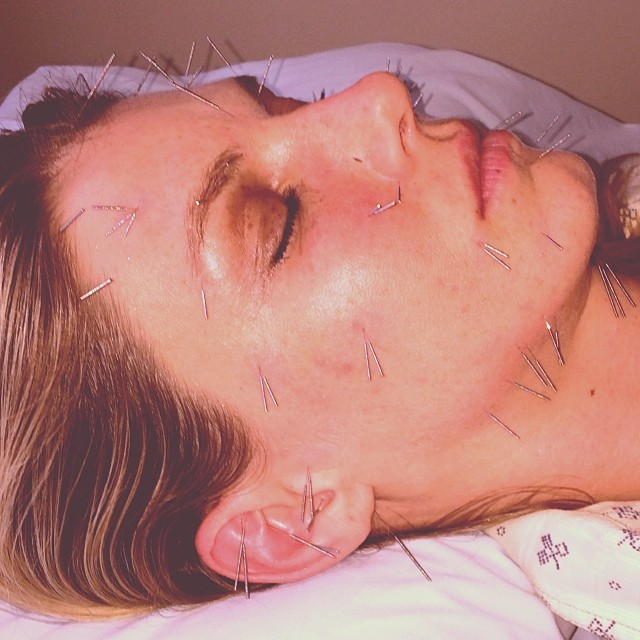 Angela Lindvall shows off her face after acupuncture