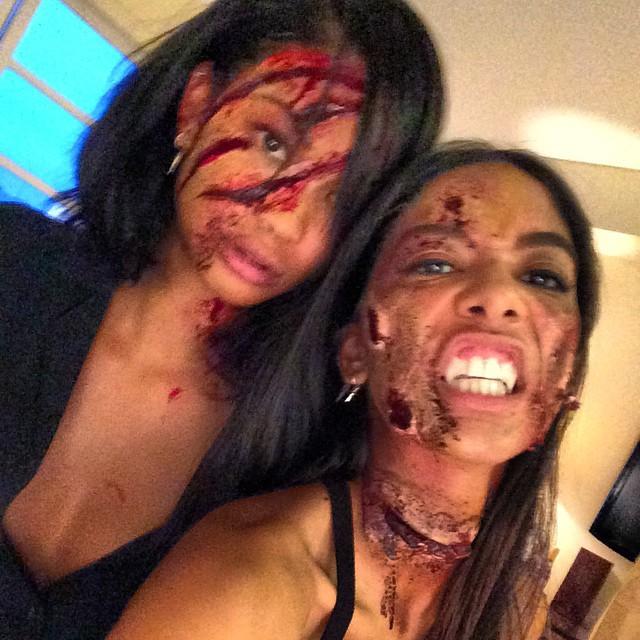 Chanel Iman & Heidi de la Rosa got some gnarly scars on their pretty faces