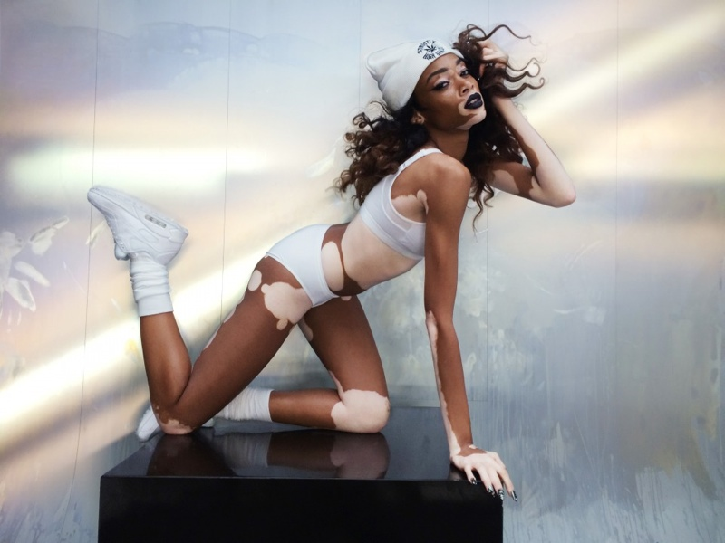The model serves as an inspiration to others struggling with vitiligo. Photo: Nick Knight/SHOWstudio.