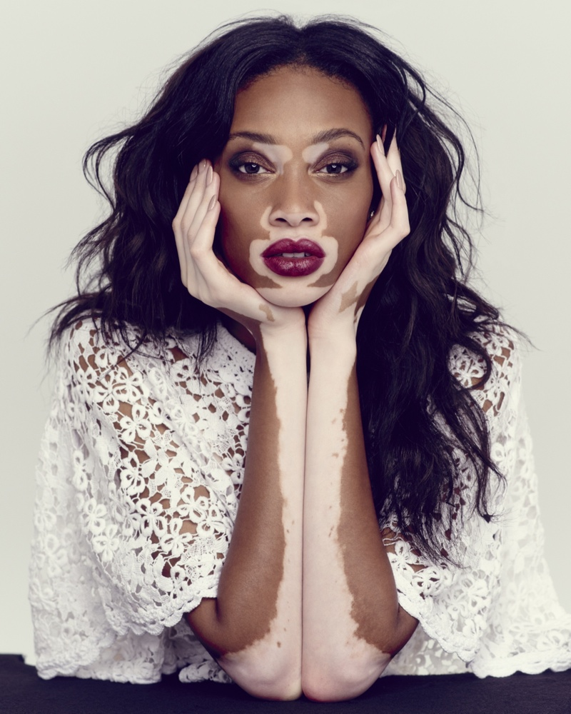 Winnie Harlow stars in photoshoot for The Observer. Image: Mary Rozzi