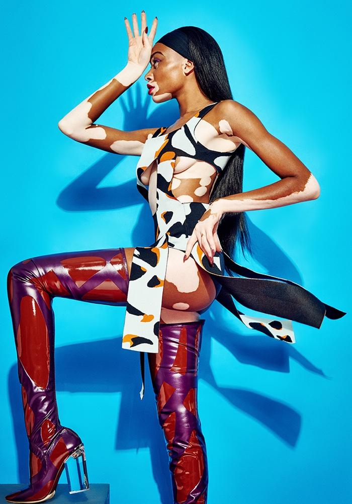 The model who has vitiligo poses for Branislav Simoncik in the photo spread