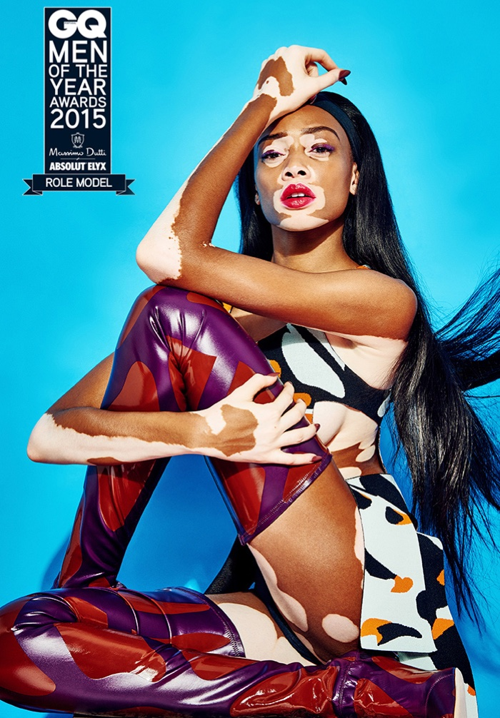 Winnie-Harlow-GQ-Portugal-Pictures-2015-04