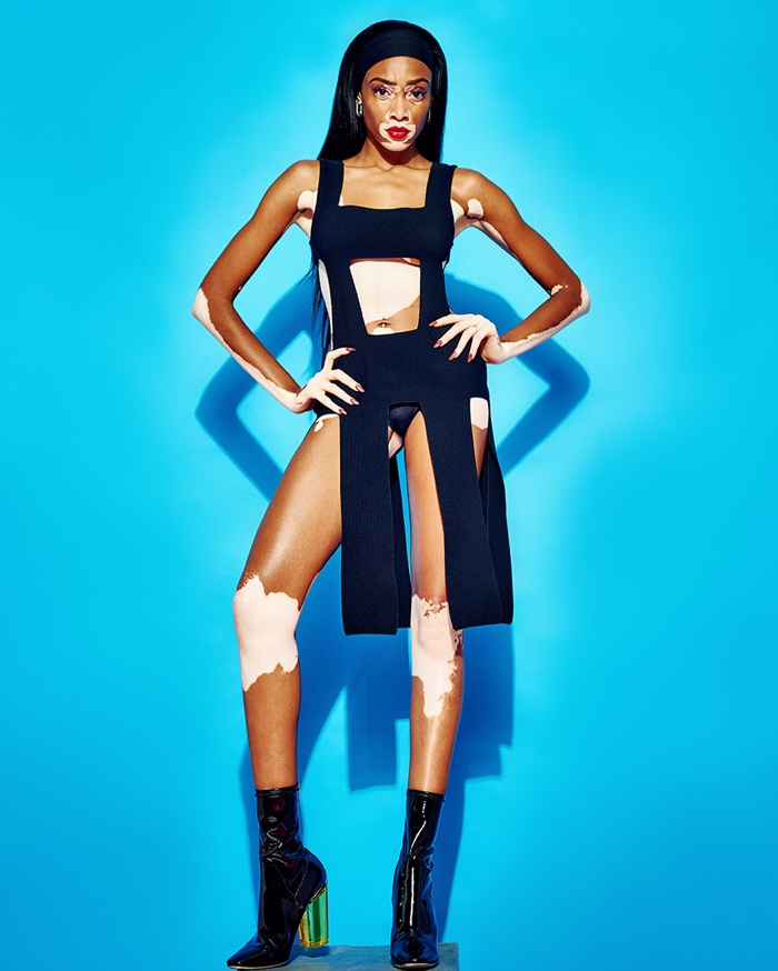 Winnie-Harlow-GQ-Portugal-Pictures-2015-07