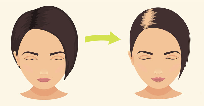 Hair Loss: Know the Causes & How to Prevent It