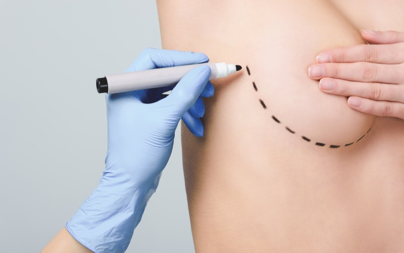 Lines Breast Marking Plastic Surgery