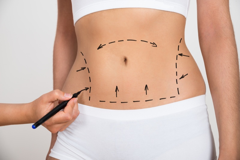 Drawing Lines Stomach Surgery