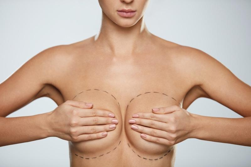 Model Breast Augmentation Markings Topless