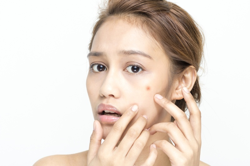 Asian Woman Worrying Face Blemish