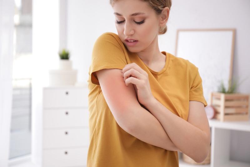 Woman Touching Rash Arm