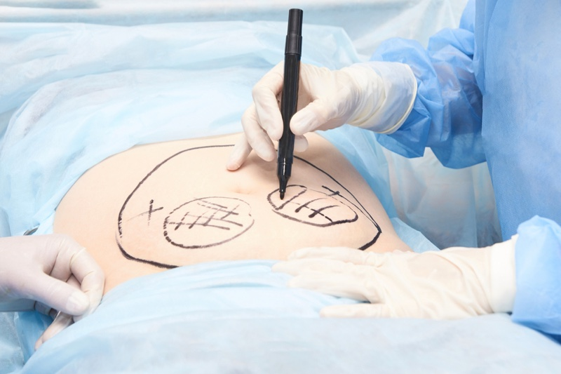 Doctor Liposuction Drawing Stomach
