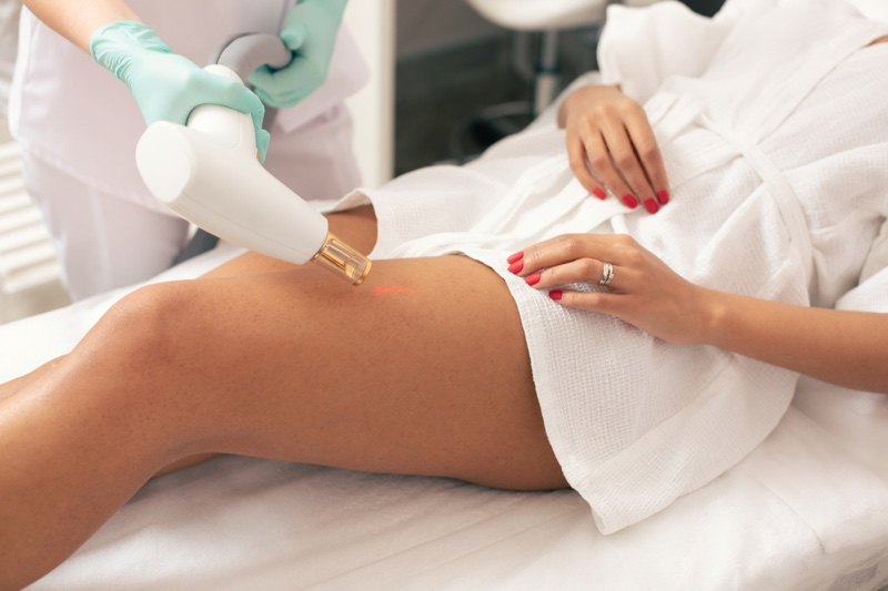 Laser Therapy Stretch Mark Removal Woman's Leg