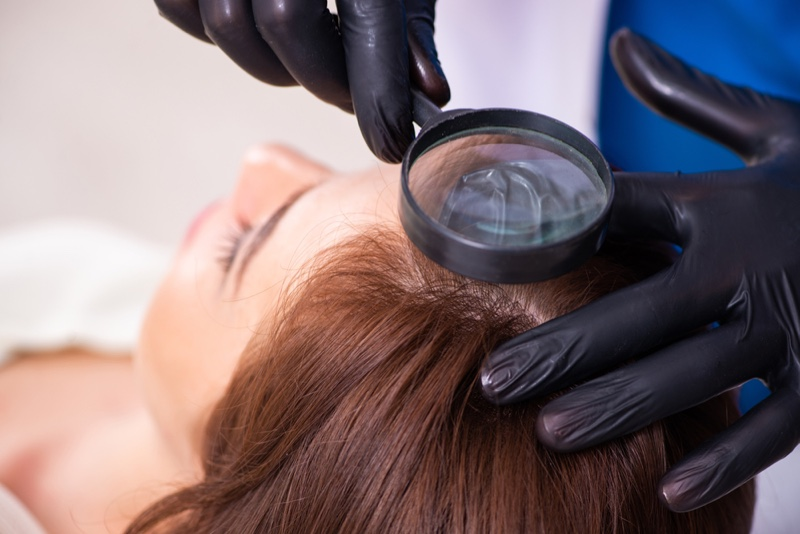 Hair Transplant Woman Procedure