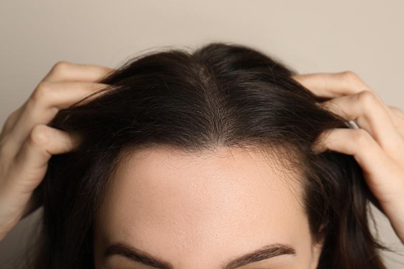 Closeup Woman's Scalp Balding Thinning Hair