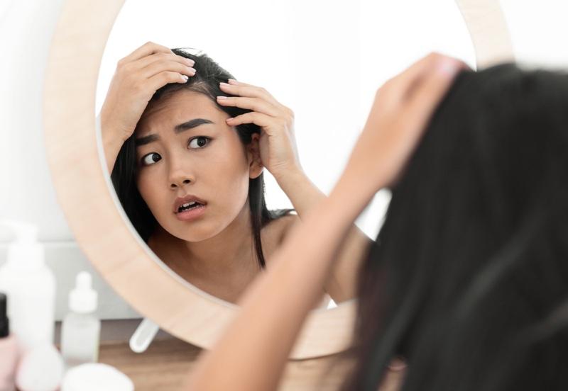 Worried Asian Woman Looking Hair Line Mirror