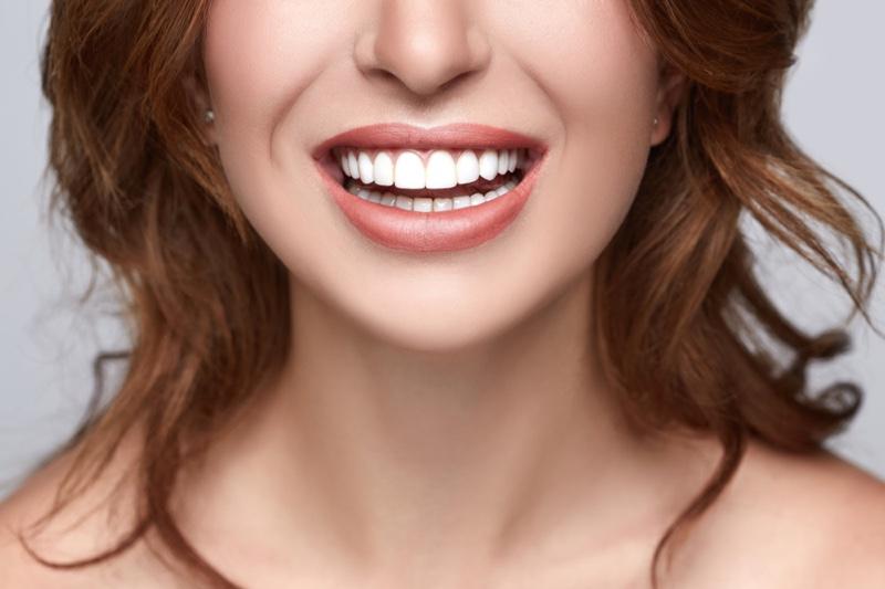 Closeup Womans Teeth Smile Veneers