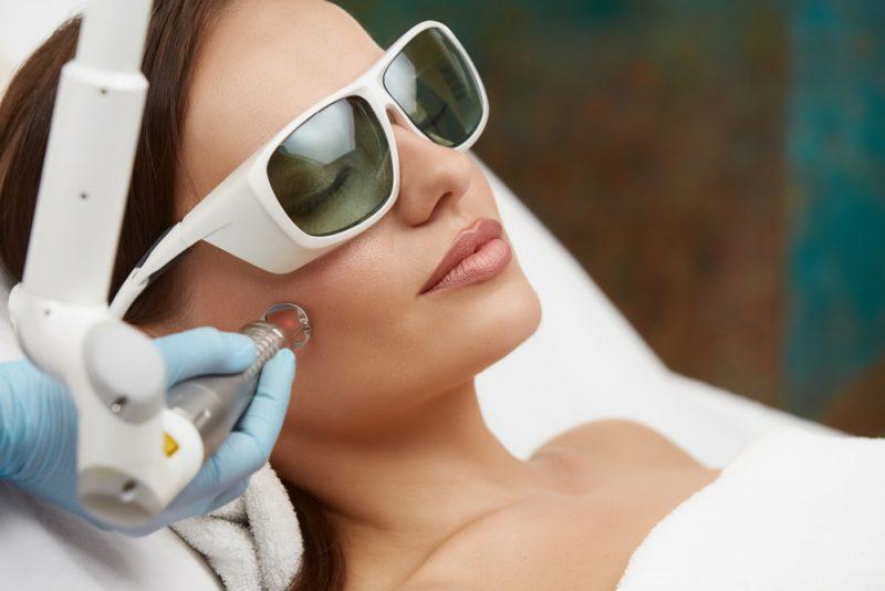 Woman Skin Lasering